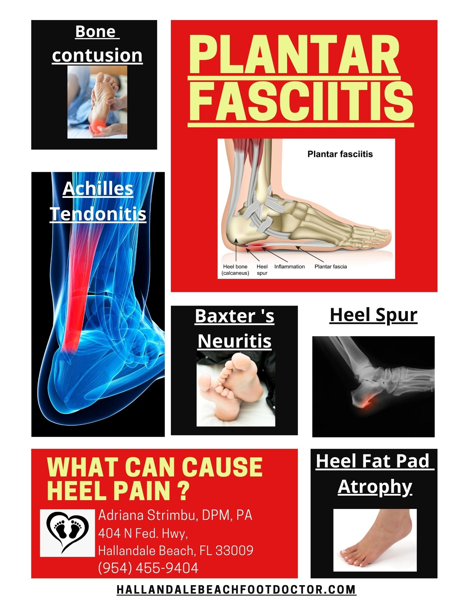 What Can Cause Heel Pain?
