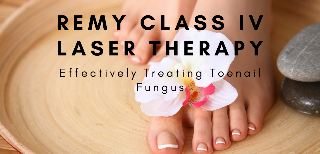 REMY LASER for fungus toenails