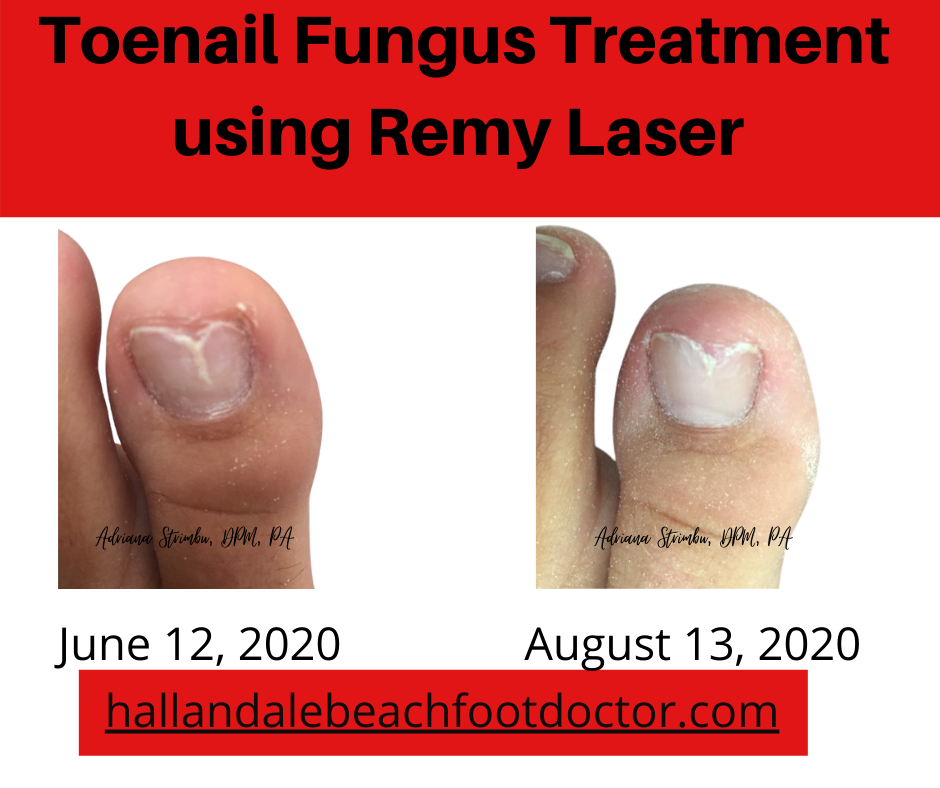 toenail fungus remy laser treatment picture before and after
